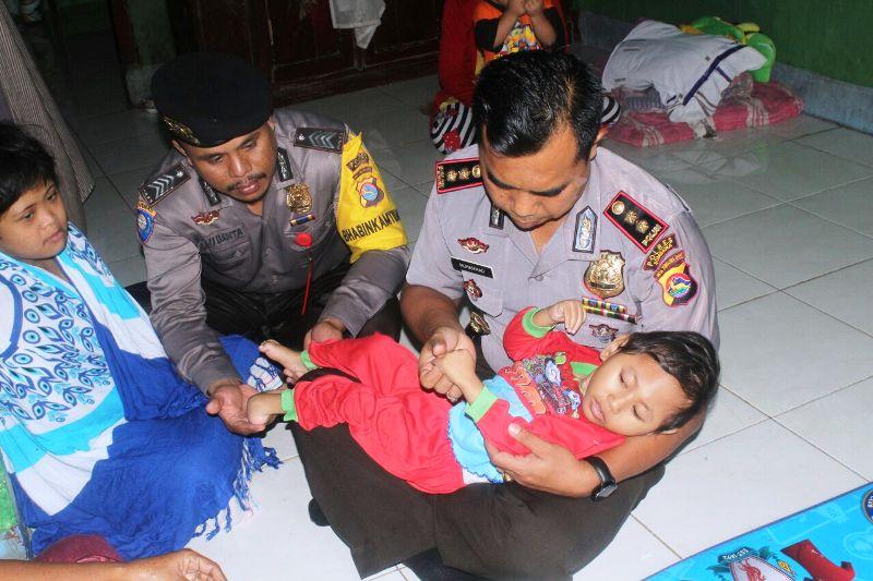 Kapolres Sumbawa AKBP Muhammad SIK menggendong Olipia, balita penderita Hydrocepallus